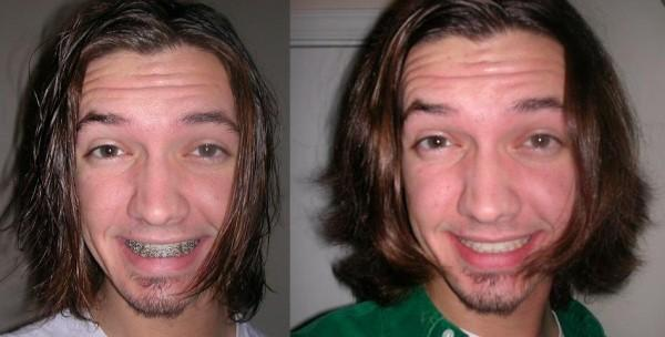 The Before and After Braces with Lower Jaw Surgery