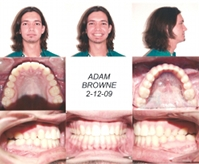 After Jaw Surgery Profile