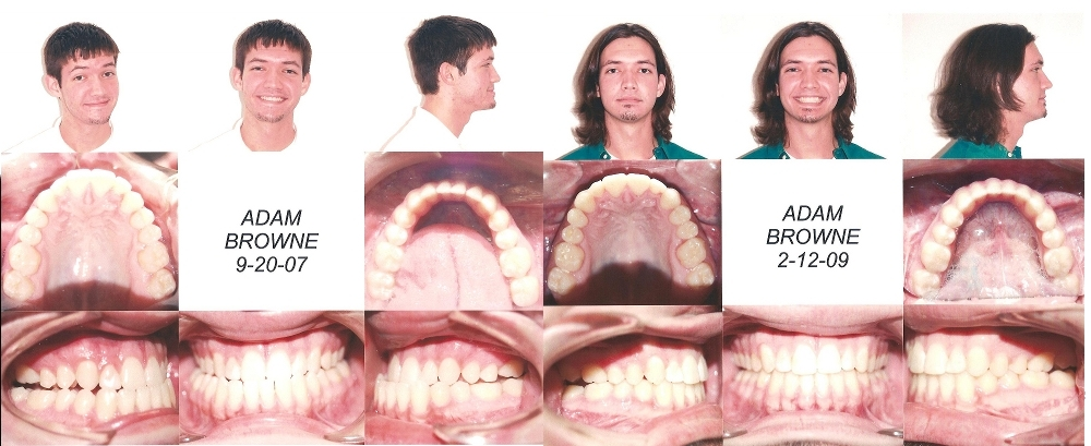 Before and After Jaw Surgery Profile