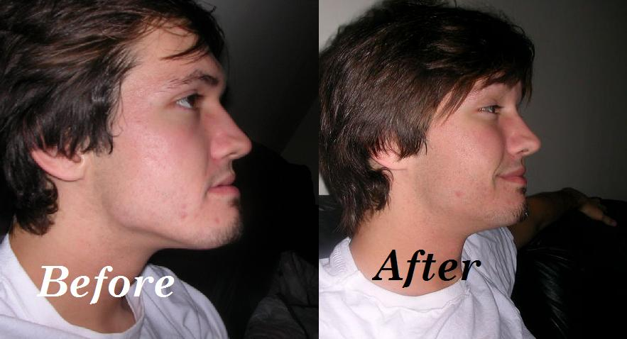 The Before and After Lower Jaw Surgery
